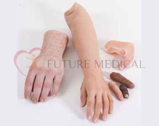 الاطراف الصناعية لليد والاصبع