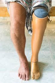 أنواع الاطراف الصناعية عند مفصل الركبة