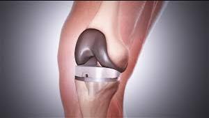 انواع الركبة الطبية- شركة Globalللاطراف الصناعية