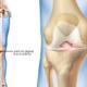 انواع الركبة الطبية- شركة المستقبل للاطراف الصناعية