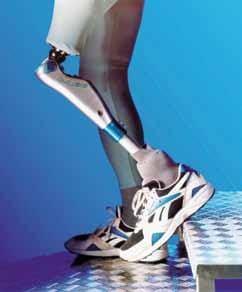 الاطراف الصناعية فوق الركبة